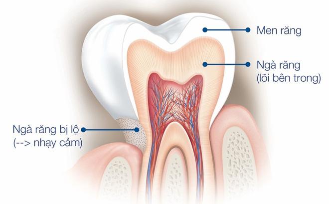 Men răng bị làm mòn làm lộ ngà răng